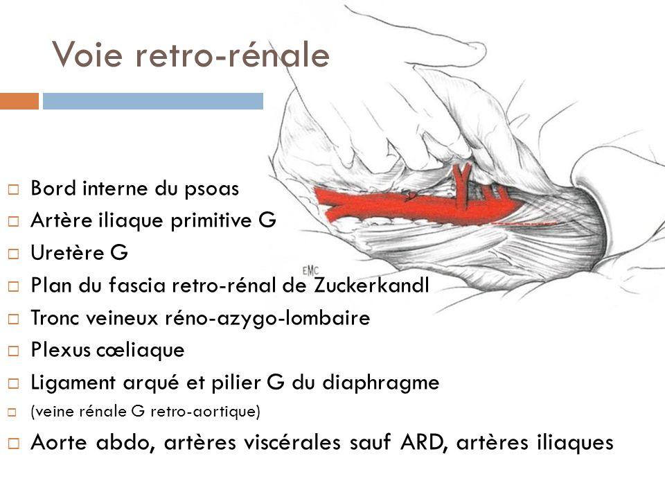 Voie retro-rénale Bord interne du psoas. Artère iliaque primitive G. Uretère G. Plan du fascia retro-rénal de Zuckerkandl.