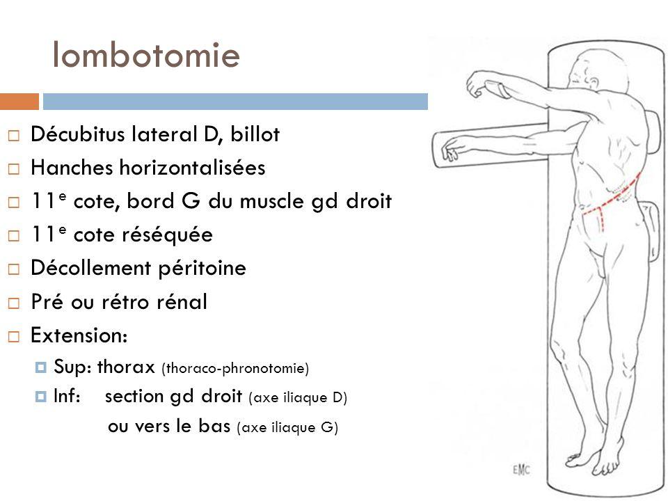lombotomie Décubitus lateral D, billot Hanches horizontalisées
