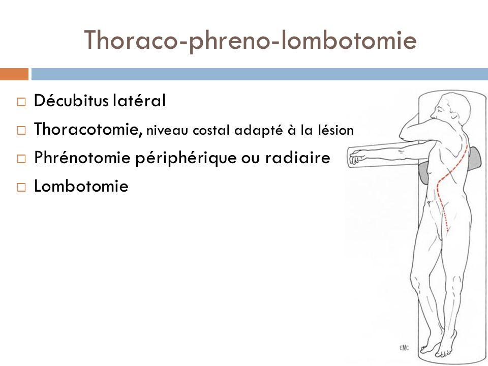Thoraco-phreno-lombotomie