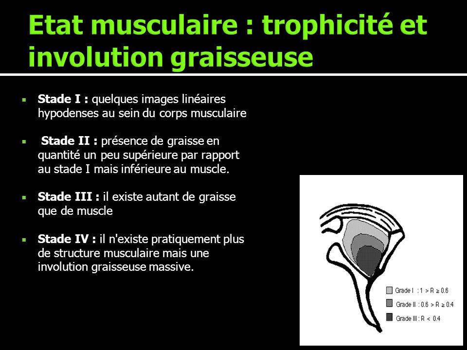 Etat musculaire : trophicité et involution graisseuse
