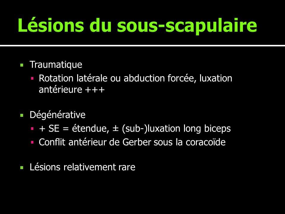 Lésions du sous-scapulaire