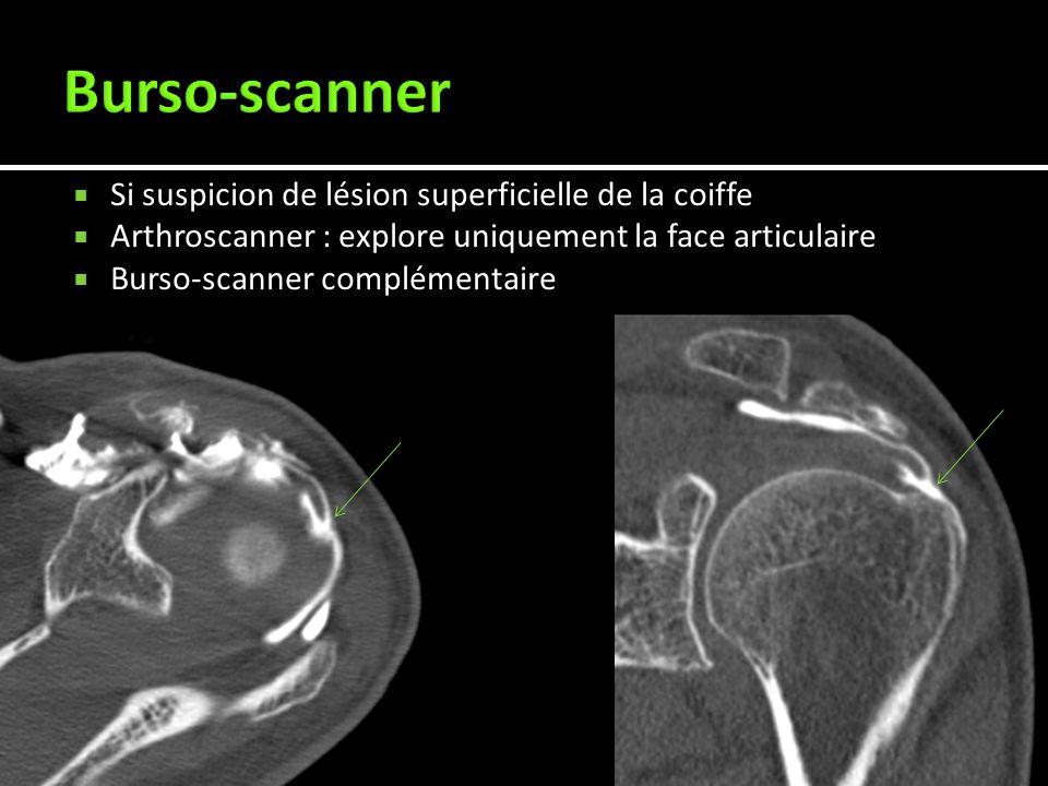Burso-scanner Si suspicion de lésion superficielle de la coiffe