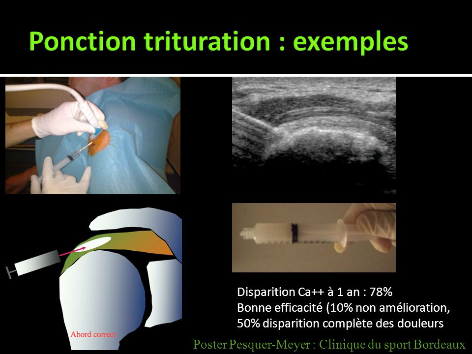 Ponction trituration : exemples