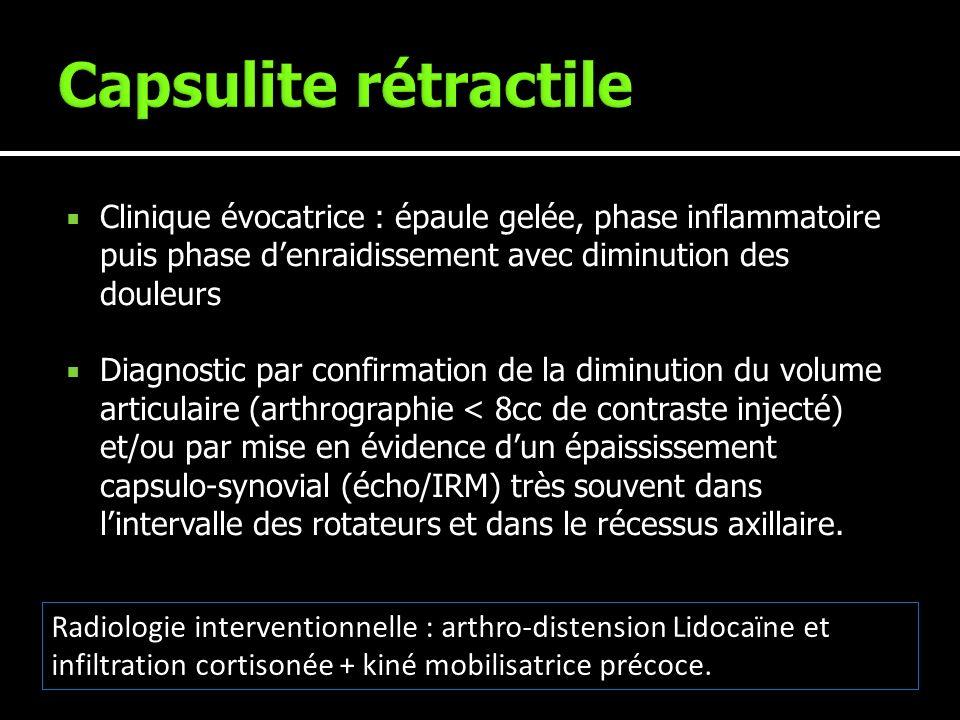 Capsulite rétractile Clinique évocatrice : épaule gelée, phase inflammatoire puis phase d'enraidissement avec diminution des douleurs.