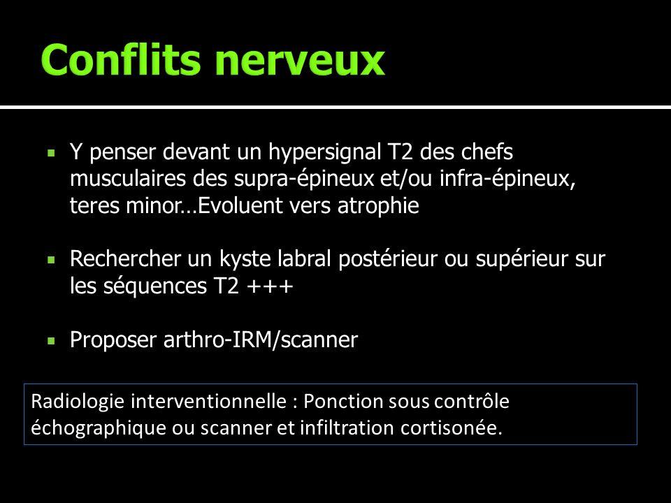 Conflits nerveux Y penser devant un hypersignal T2 des chefs musculaires des supra-épineux et/ou infra-épineux, teres minor…Evoluent vers atrophie.