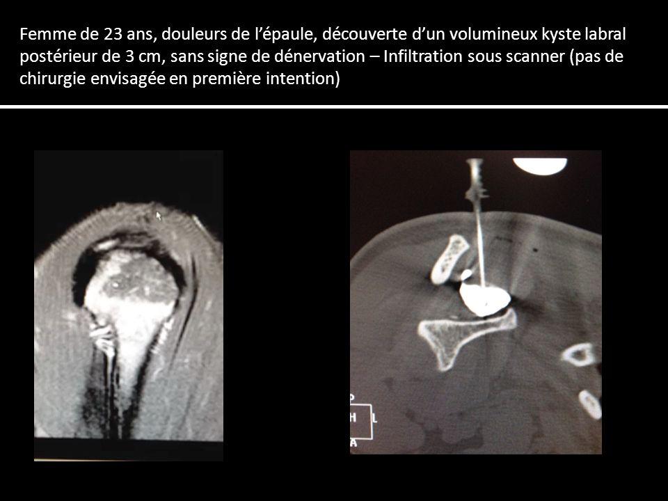 Femme de 23 ans, douleurs de l'épaule, découverte d'un volumineux kyste labral postérieur de 3 cm, sans signe de dénervation – Infiltration sous scanner (pas de chirurgie envisagée en première intention)