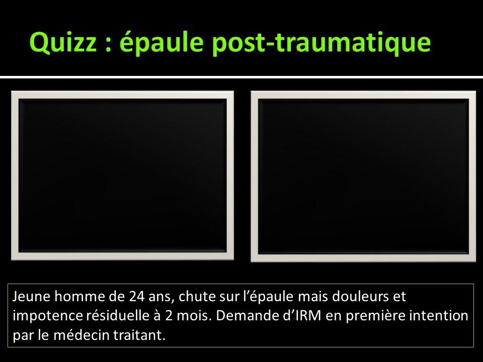 Quizz : épaule post-traumatique