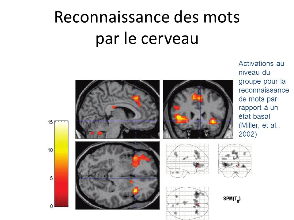 Reconnaissance des mots par le cerveau