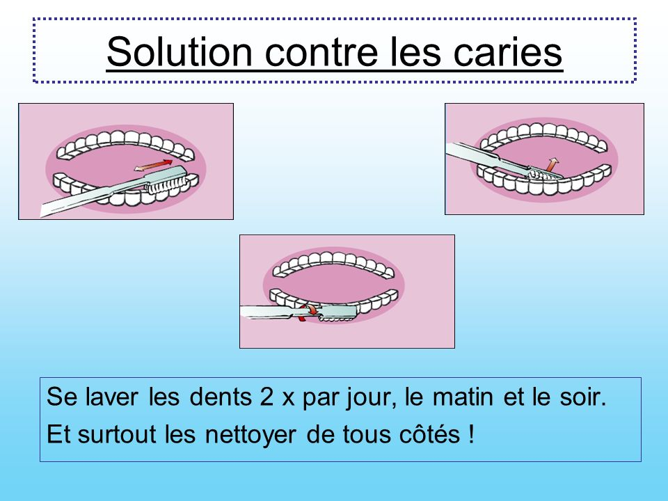Solution contre les caries
