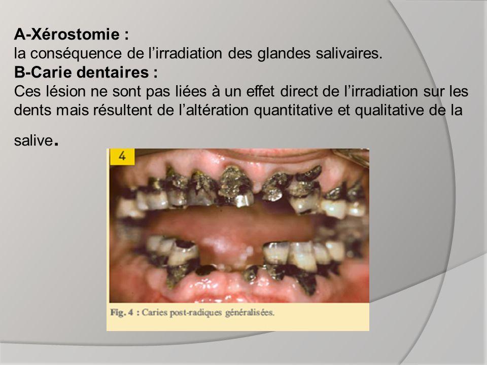 A-Xérostomie : la conséquence de l'irradiation des glandes salivaires