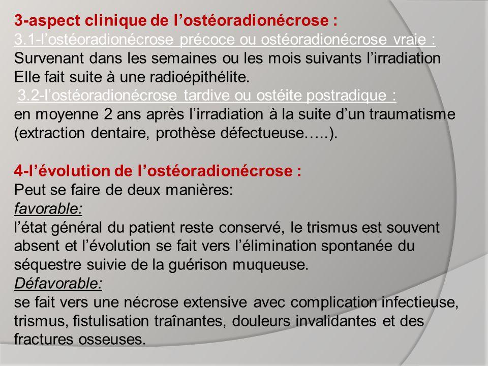 3-aspect clinique de l'ostéoradionécrose : 3
