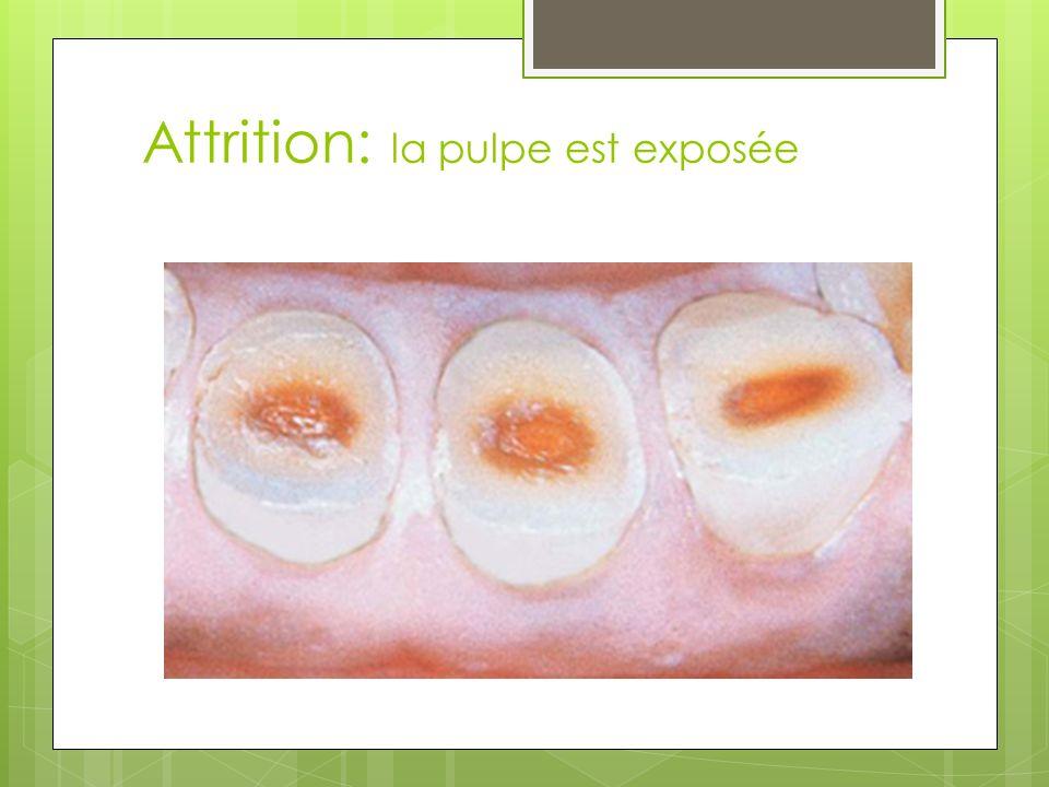 Attrition: la pulpe est exposée