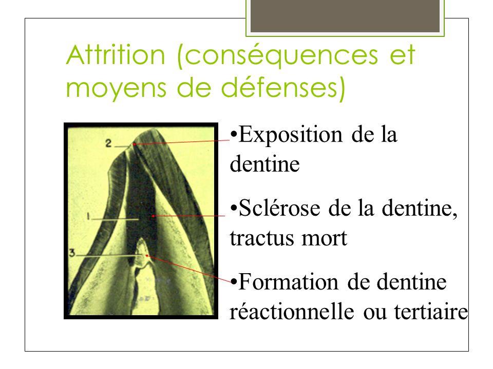 Attrition (conséquences et moyens de défenses)