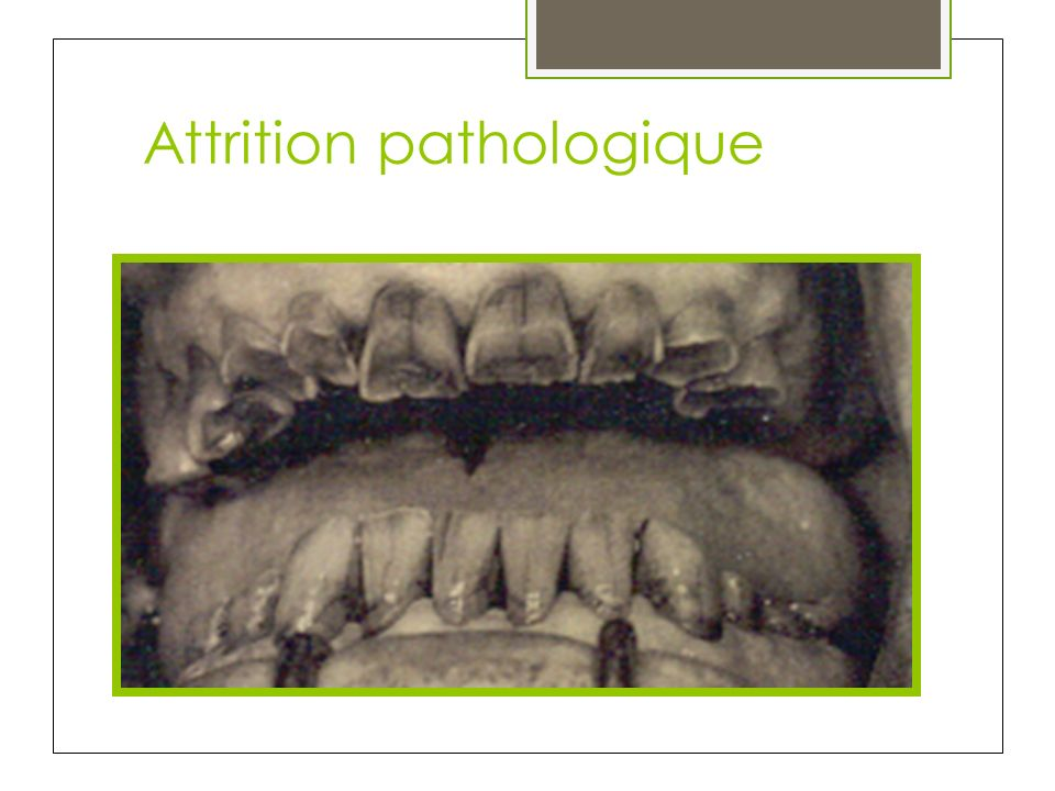 Attrition pathologique