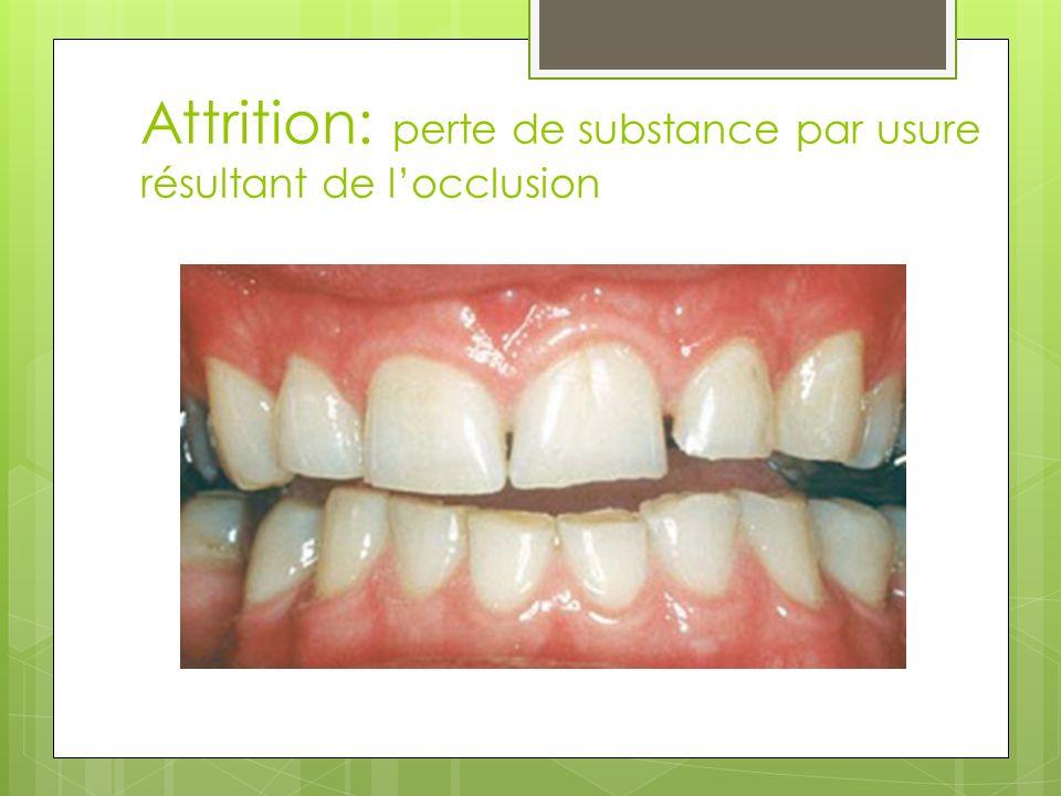 Attrition: perte de substance par usure résultant de l'occlusion