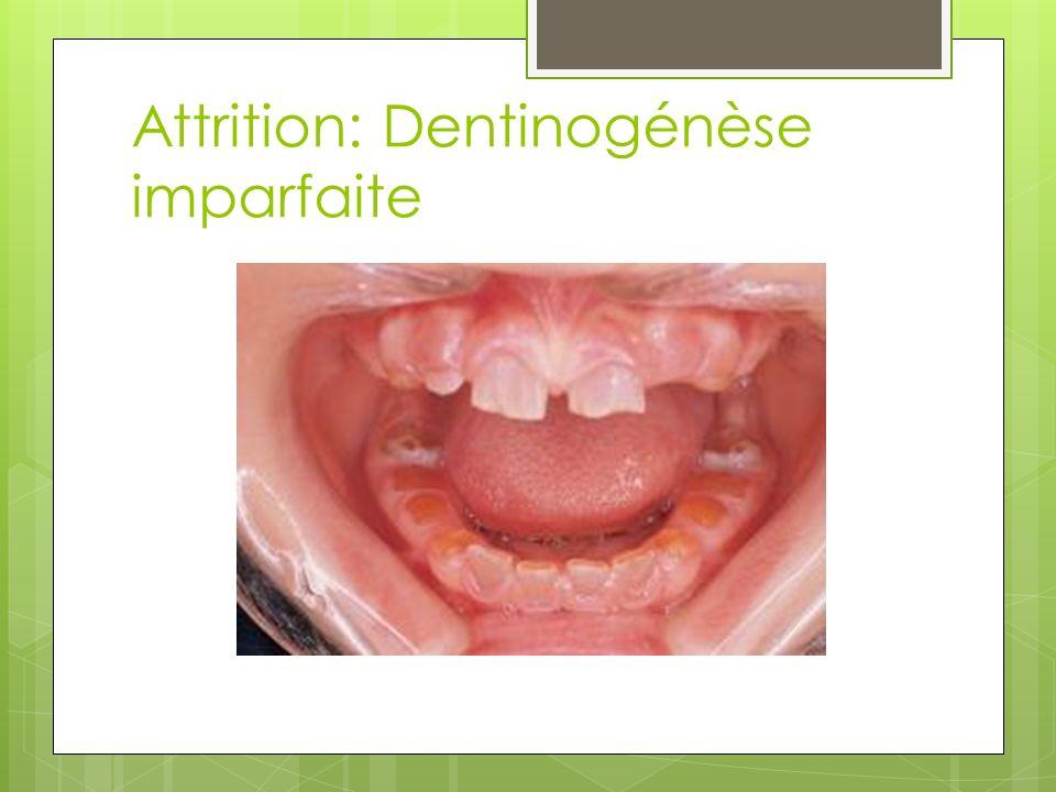 Attrition: Dentinogénèse imparfaite