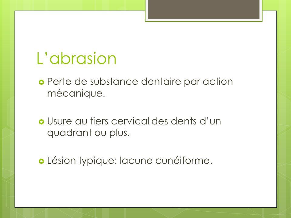 L'abrasion Perte de substance dentaire par action mécanique.
