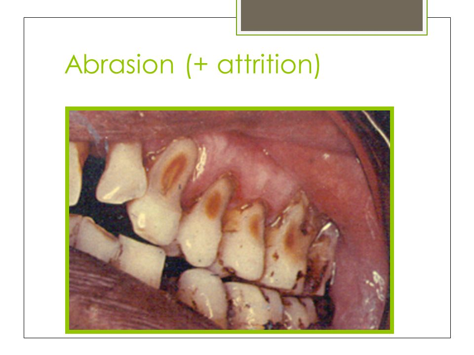 Abrasion (+ attrition)