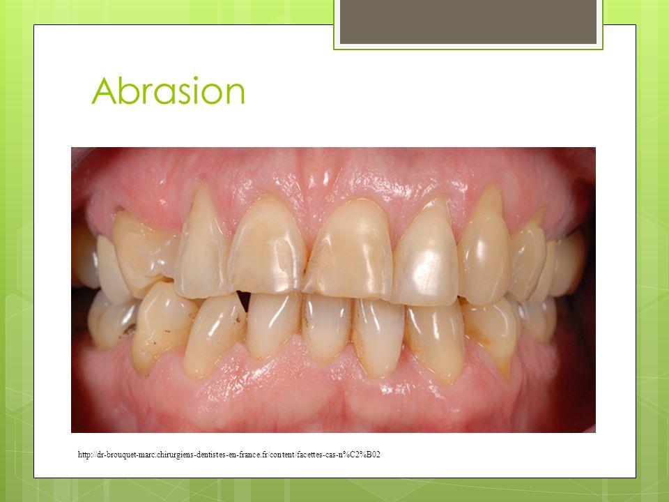 Abrasion http://dr-brouquet-marc.chirurgiens-dentistes-en-france.fr/content/facettes-cas-n%C2%B02