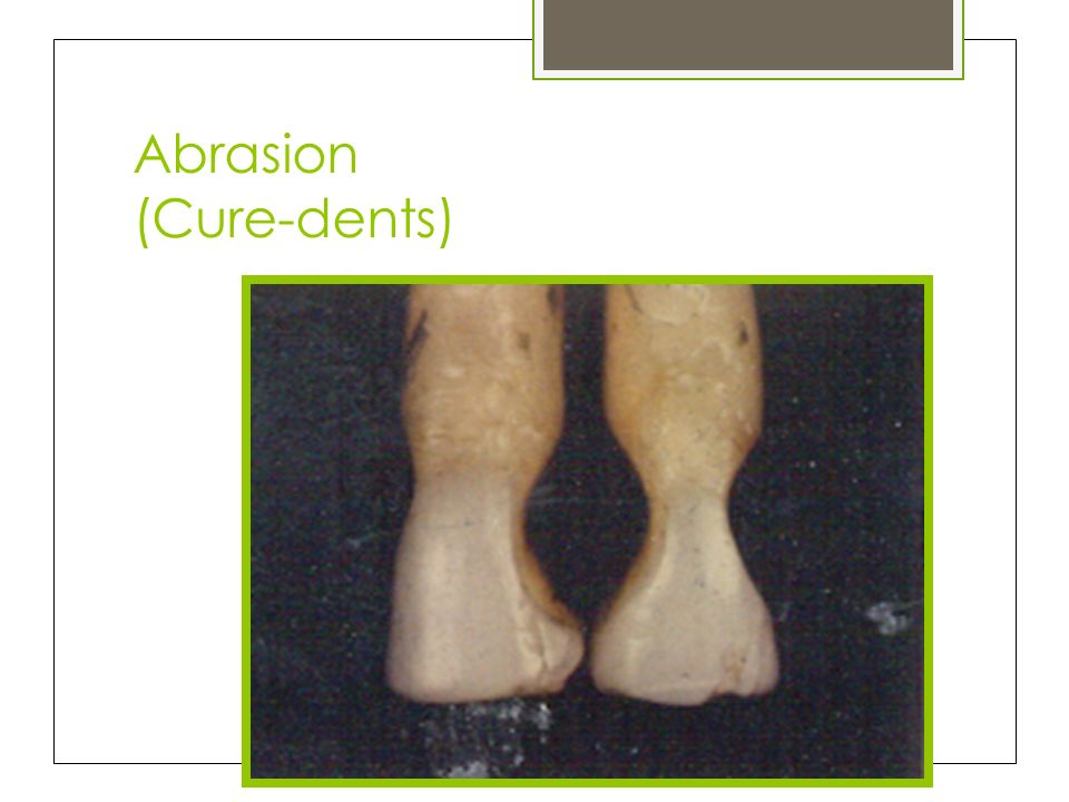 Abrasion (Cure-dents)