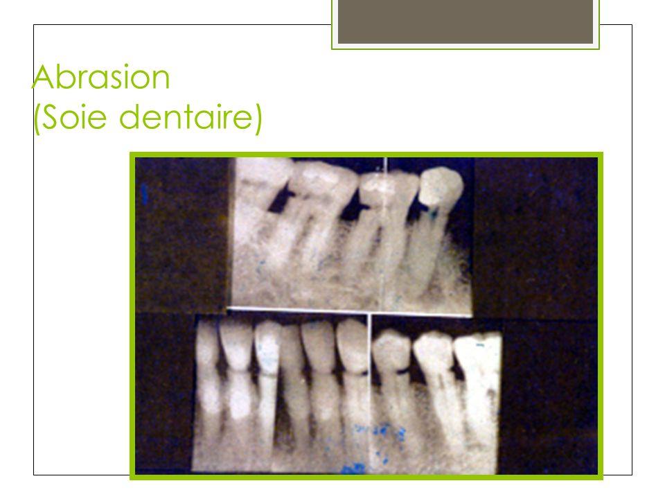 Abrasion (Soie dentaire)