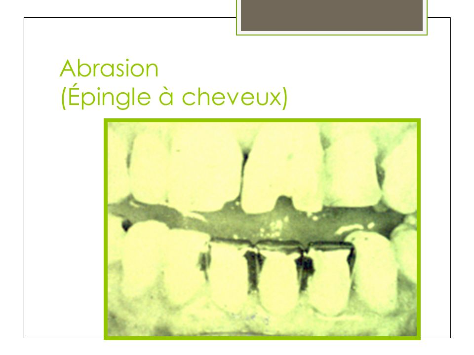 Abrasion (Épingle à cheveux)
