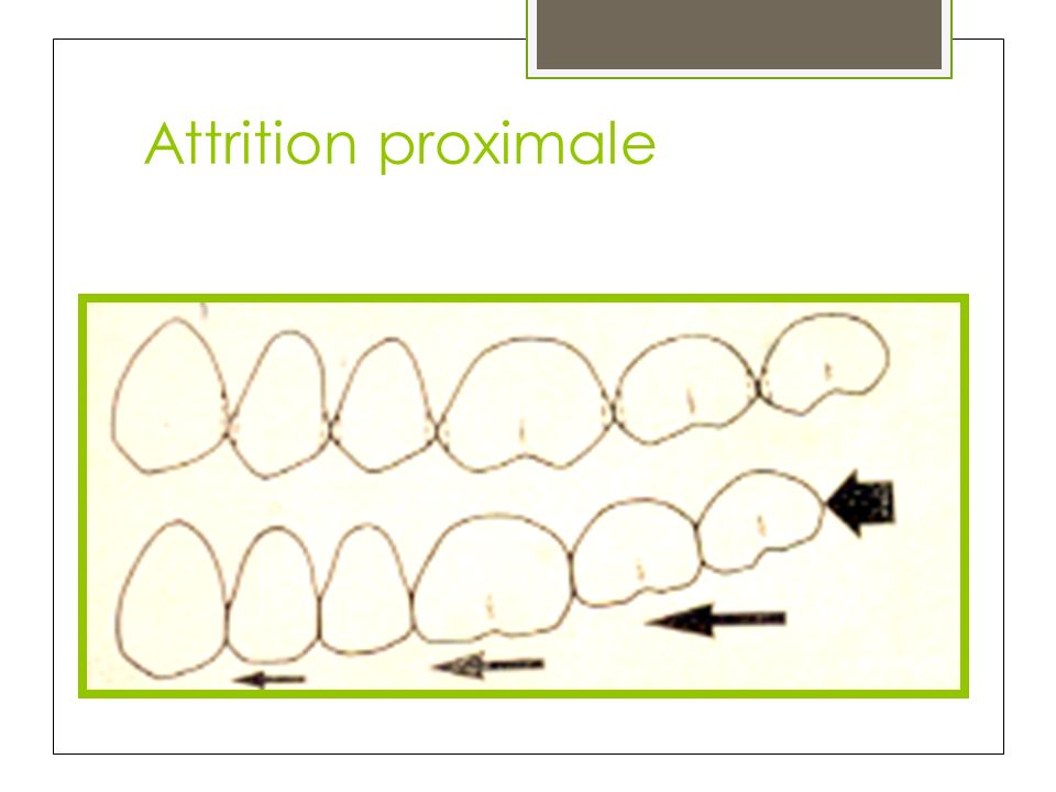 Attrition proximale