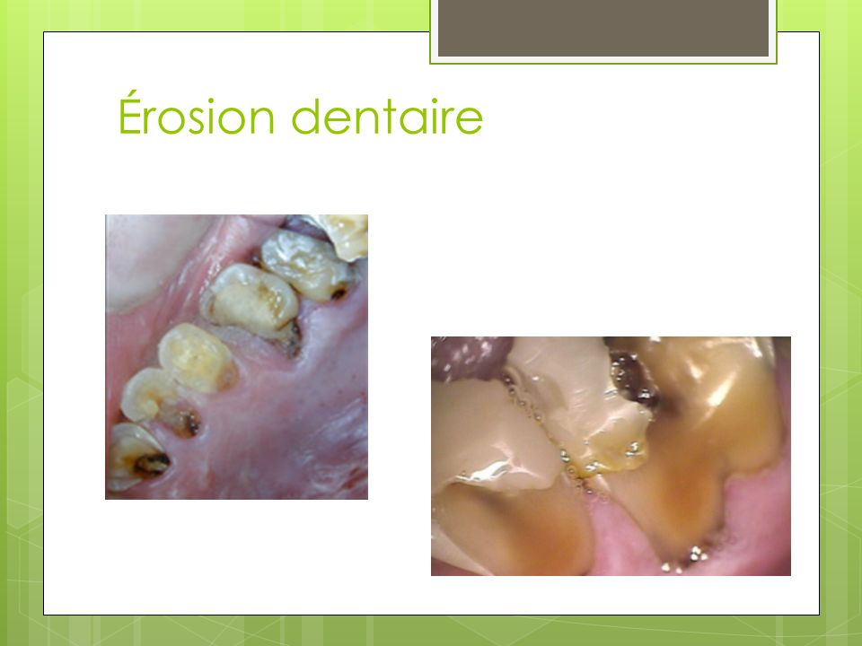 Érosion dentaire