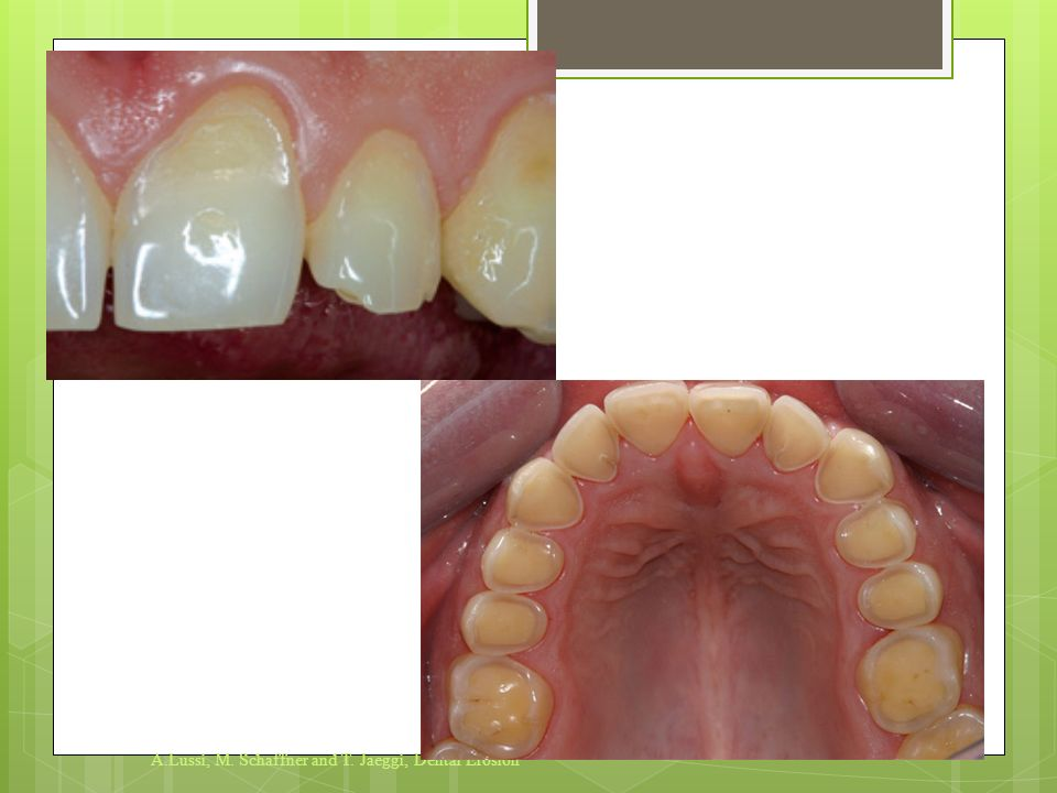 A.Lussi, M. Schaffner and T. Jaeggi, Dental Erosion