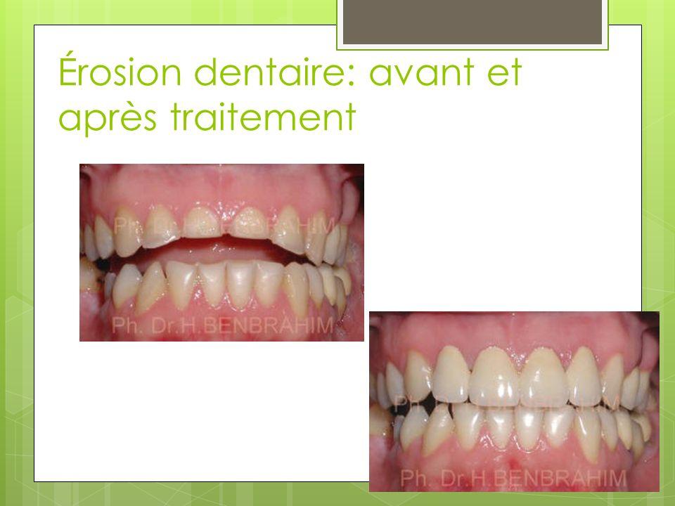 Érosion dentaire: avant et après traitement