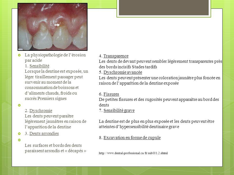 4. Transparence Les dents de devant peuvent sembler légèrement transparentes près des bords incisifs Stades tardifs