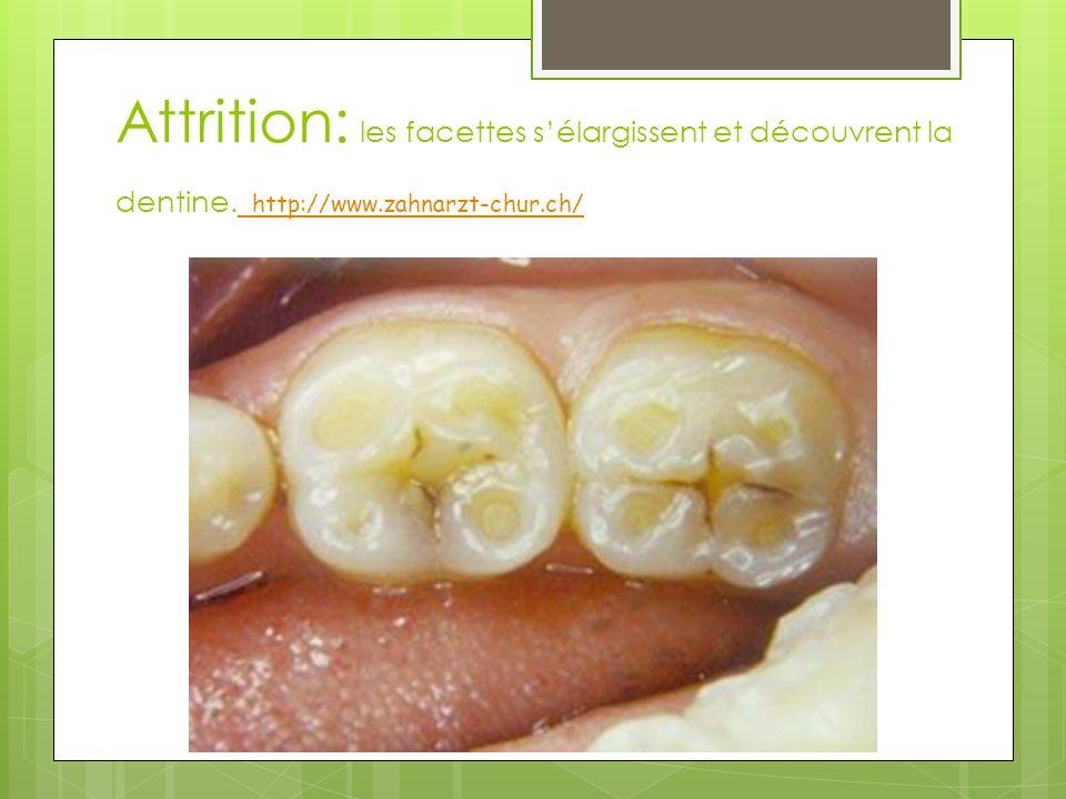 Attrition: les facettes s'élargissent et découvrent la dentine
