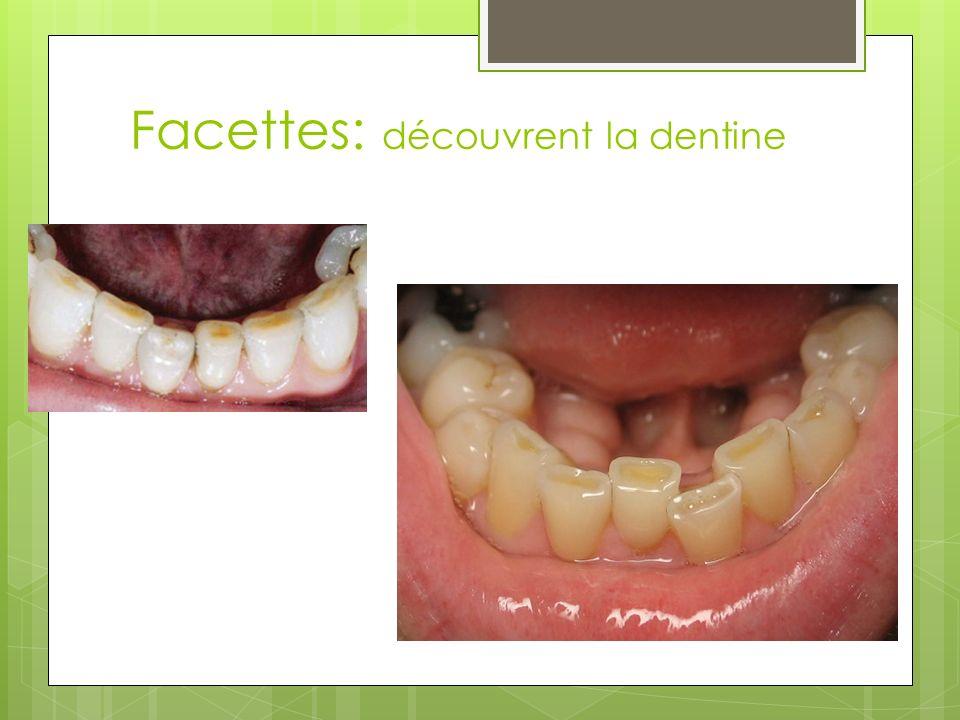 Facettes: découvrent la dentine