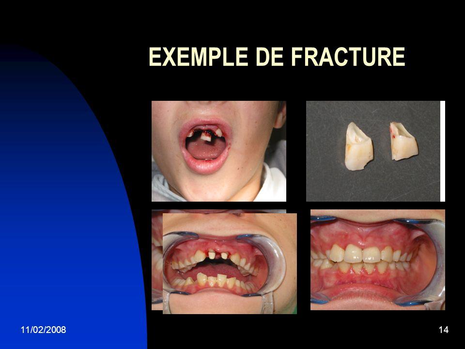 EXEMPLE DE FRACTURE 11/02/2008