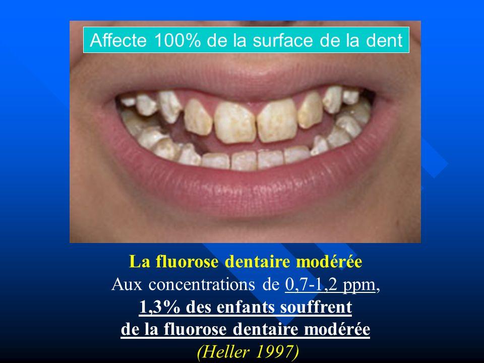 Affecte 100% de la surface de la dent