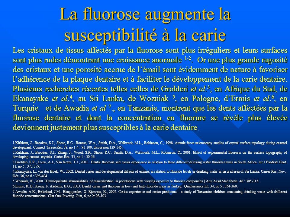 La fluorose augmente la susceptibilité à la carie