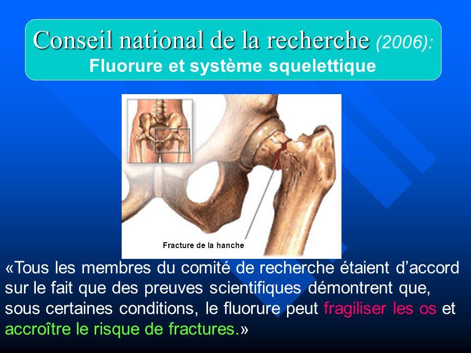 Fluorure et système squelettique