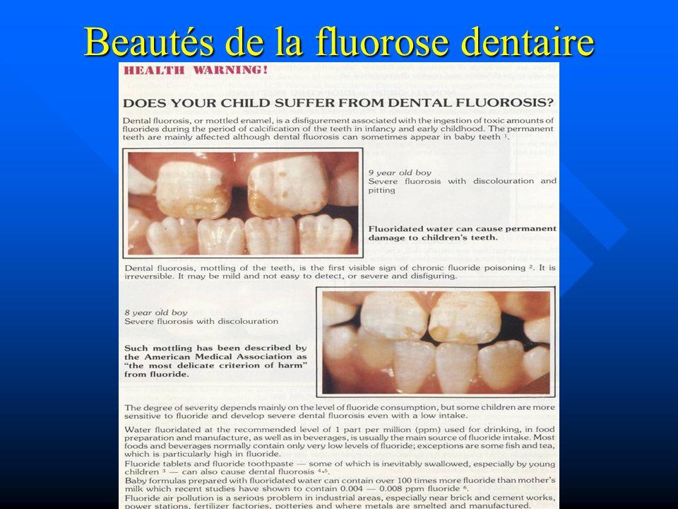 Beautés de la fluorose dentaire