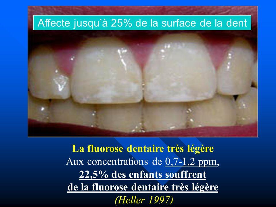 Affecte jusqu'à 25% de la surface de la dent