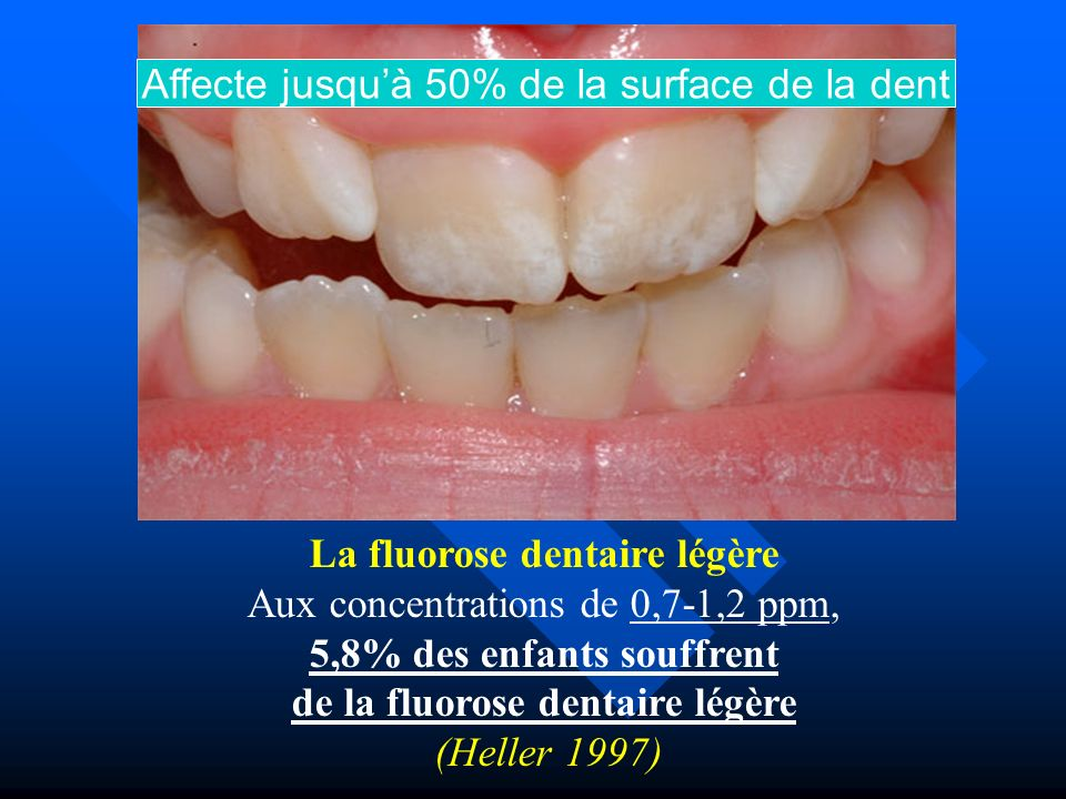 Affecte jusqu'à 50% de la surface de la dent
