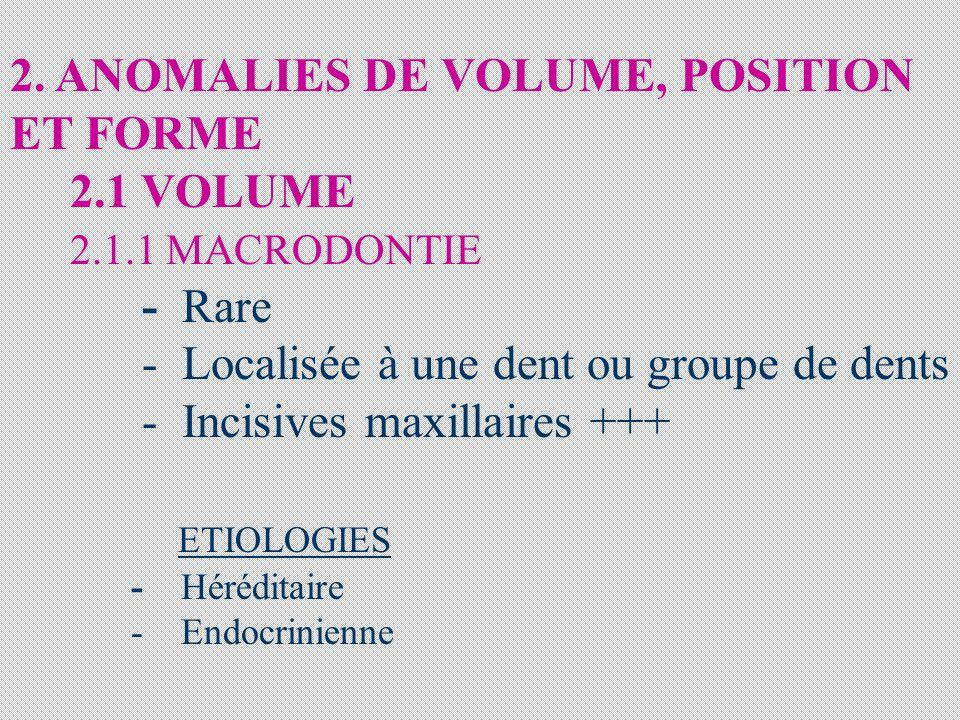 2. ANOMALIES DE VOLUME, POSITION ET FORME 2.1 VOLUME 2.1.1 MACRODONTIE