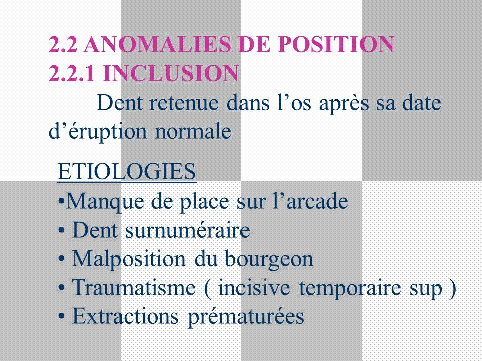 2.2 ANOMALIES DE POSITION 2.2.1 INCLUSION. Dent retenue dans l'os après sa date. d'éruption normale.