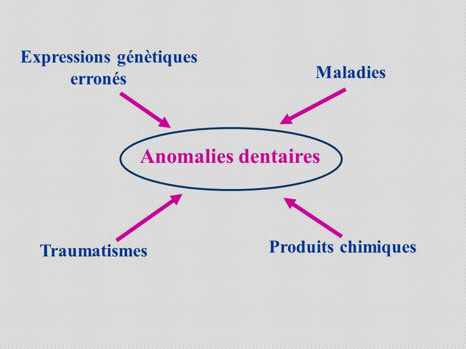 Anomalies dentaires Expressions génètiques erronés Maladies