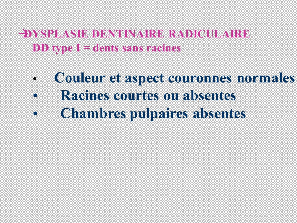 Racines courtes ou absentes Chambres pulpaires absentes