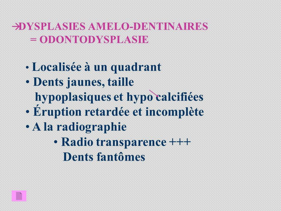 hypoplasiques et hypo calcifiées Éruption retardée et incomplète