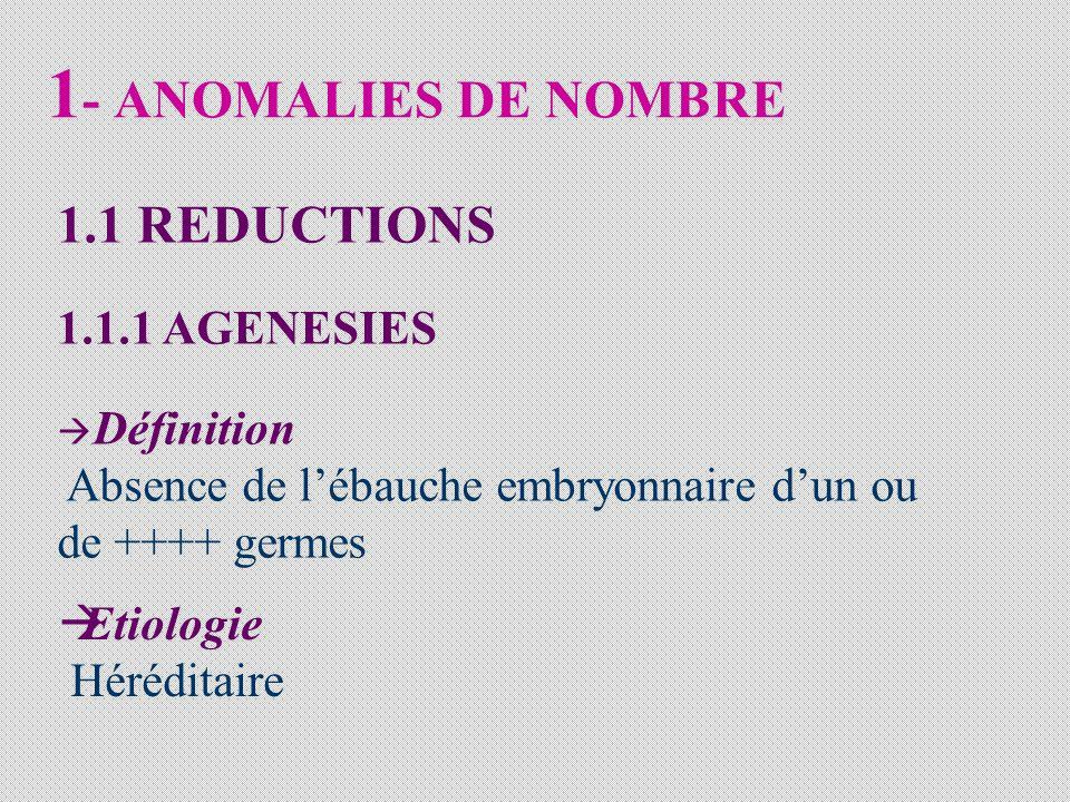 1- ANOMALIES DE NOMBRE 1.1 REDUCTIONS 1.1.1 AGENESIES