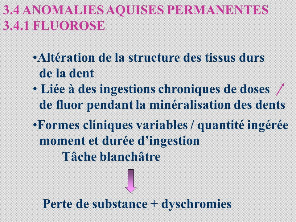 3.4 ANOMALIES AQUISES PERMANENTES