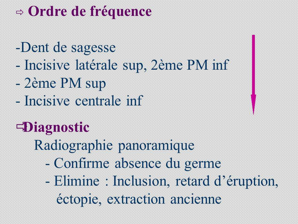 Incisive latérale sup, 2ème PM inf 2ème PM sup Incisive centrale inf