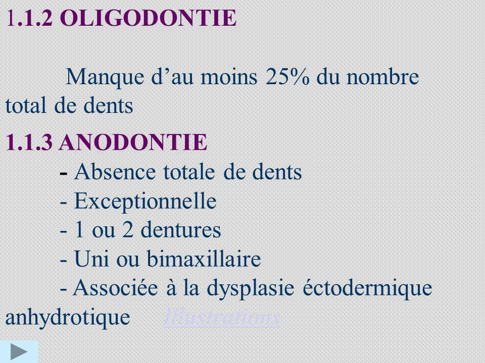 1.1.2 OLIGODONTIE Manque d'au moins 25% du nombre. total de dents. 1.1.3 ANODONTIE. - Absence totale de dents.