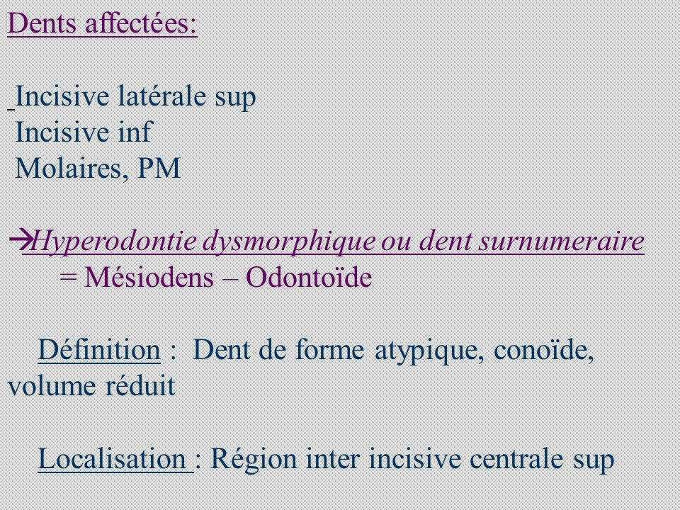 Dents affectées: Incisive latérale sup. Incisive inf. Molaires, PM. Hyperodontie dysmorphique ou dent surnumeraire.
